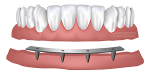 Bar Retained Dentures